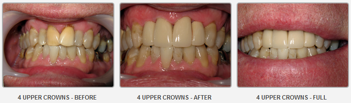 4 Upper Crowns