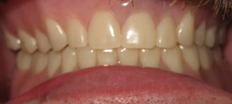 Complete Upper and Lower Dentures10