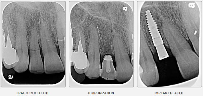 Dental Implant Restoration 3