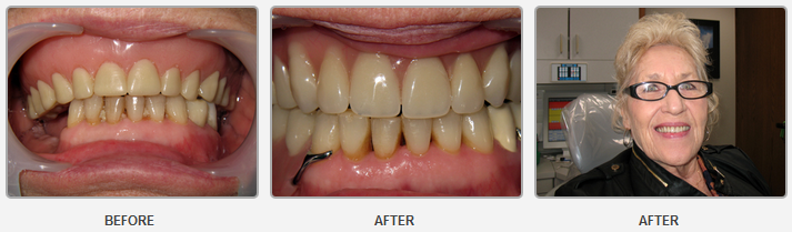 Full Upper Denture - Lower Partial