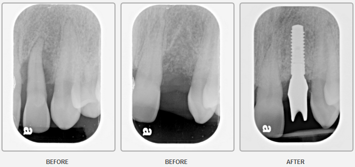 Implant with Extraction