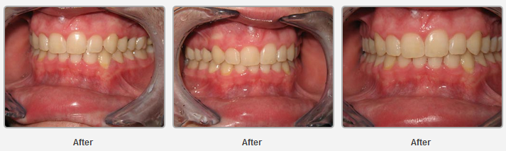 Orthodontics-3